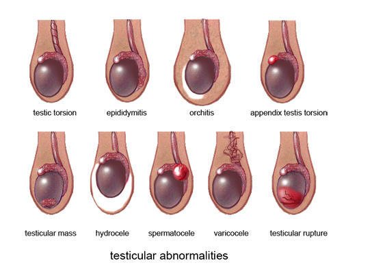 Signs And Symptoms of Testicular Cancer | Ultrasound